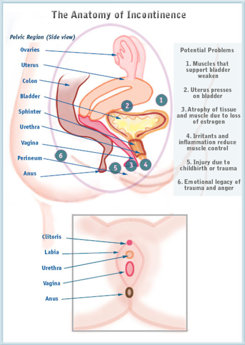 female-urinary-incontinence