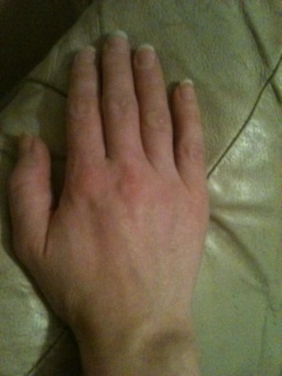 dermatitis-herpetiformis-maybe-that-rash-isnt-just-eczema