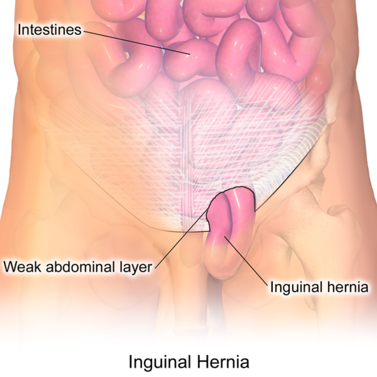 Diagram of an inguinal hernia (CC BY 3.0).