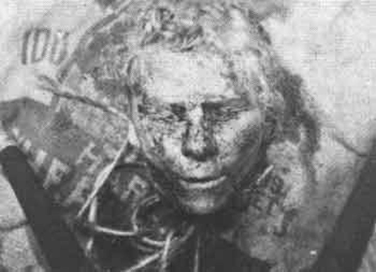 Bernice Worden's Severed Head