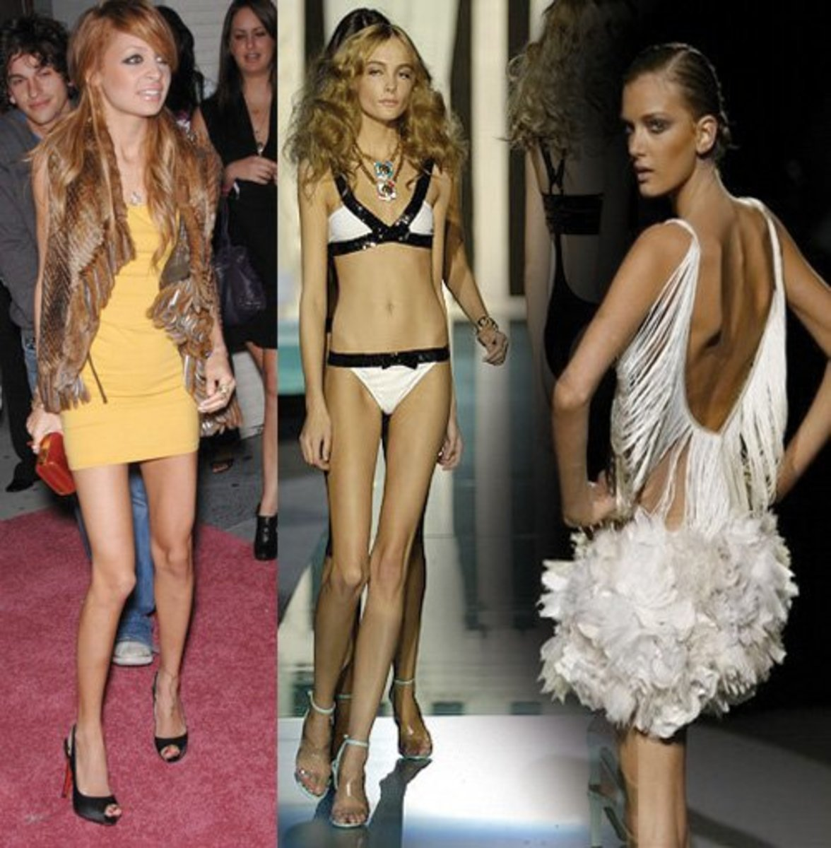 Scary Too Skinny Celebs