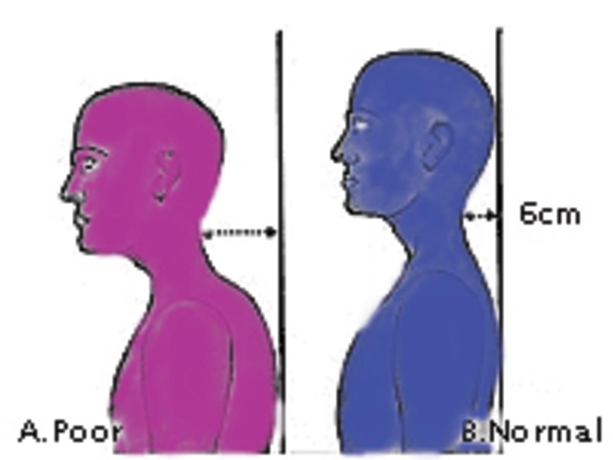 Colorful Poster Showcasing Forward Head - Improper Posture Poster next to blue proper posture