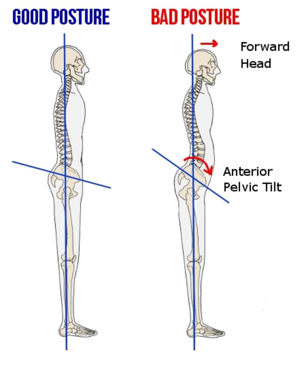 diagram of proper posture next to diagram of poor poster with anterior pelvic tilt