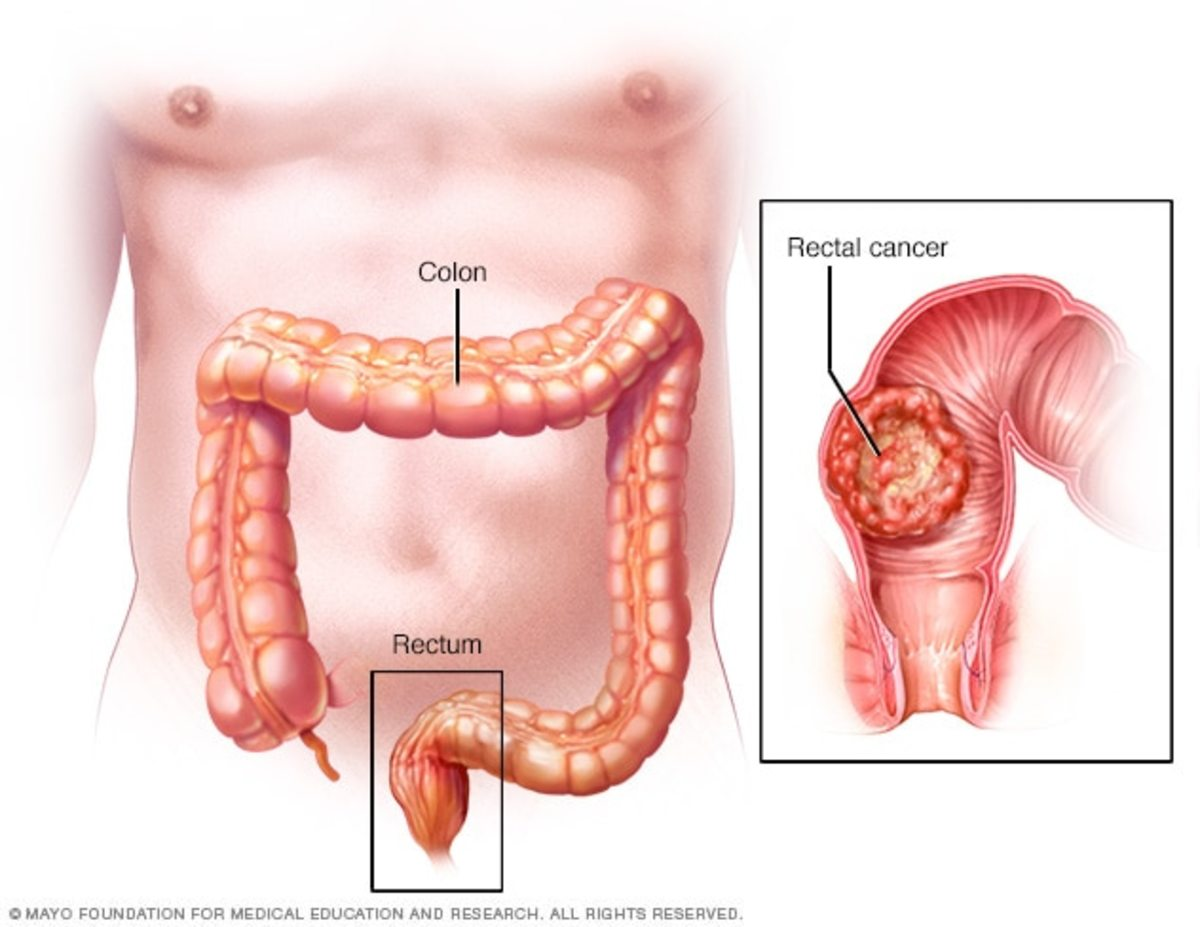 Colorectal Cancer. Rectal Cancer Diagnosis My Experience
