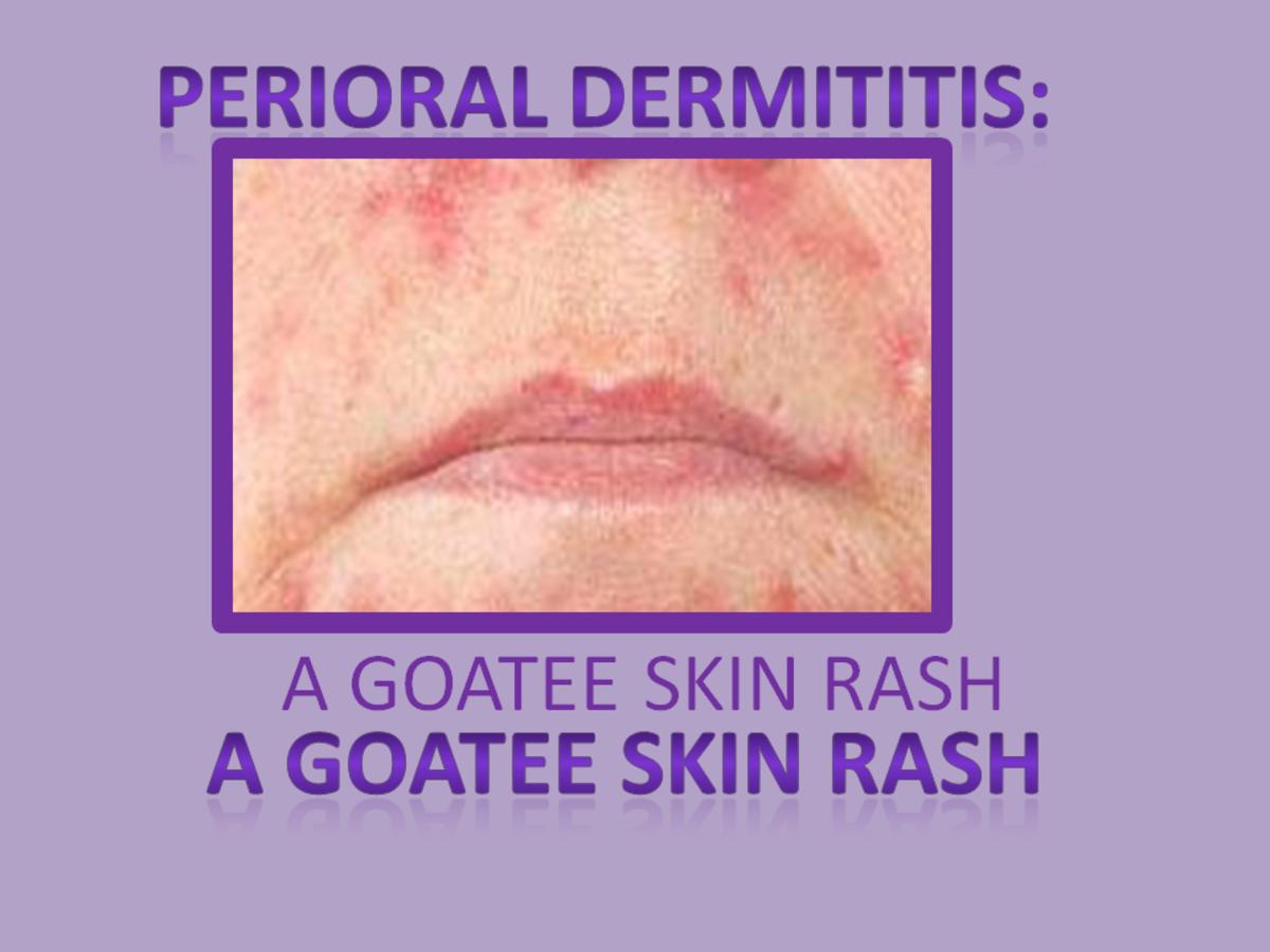 Perioral Dermatitis: A Goatee Skin Rash