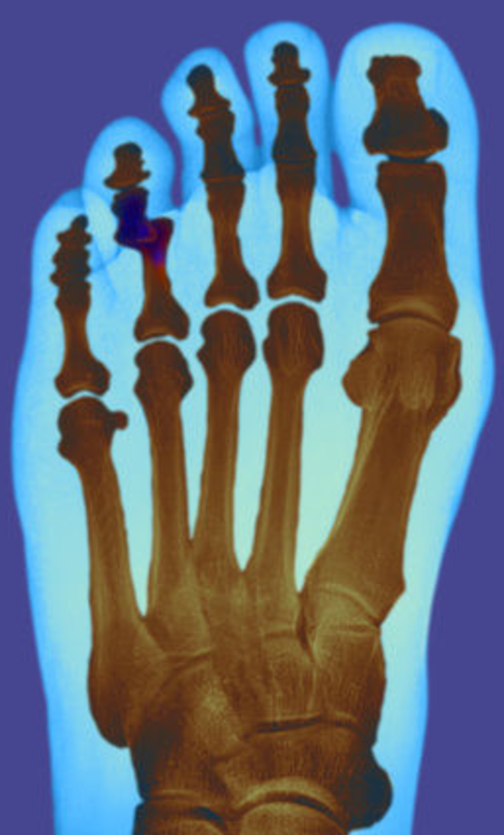 How to Reset a Dislocated Toe