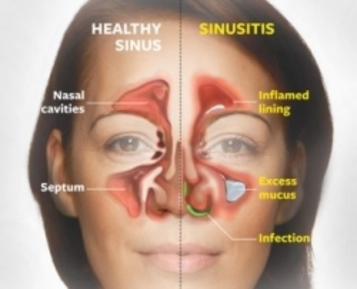 Sinus Anatomy