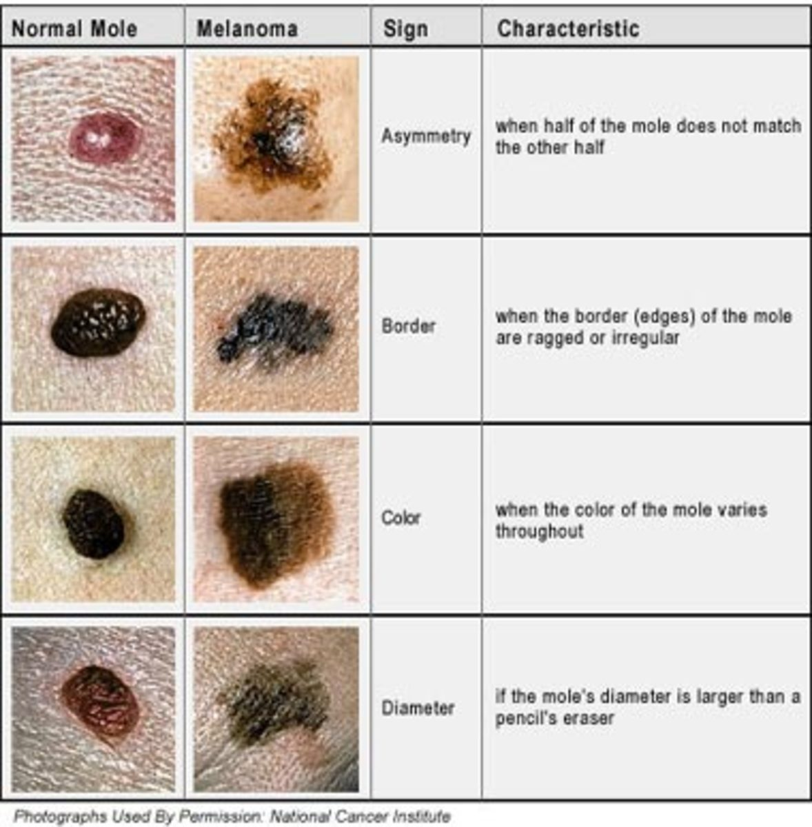 Malignant Melanoma - the  mole in the skin!