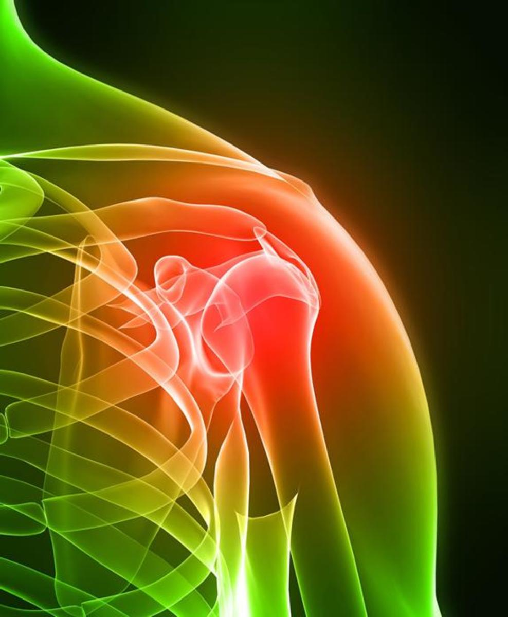 How To Stop Torn Rotator Cuff Shoulder Pain- Rotator Cuff Treatments and Exercises