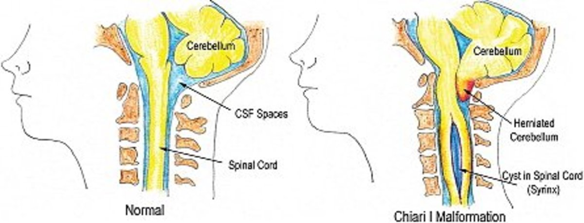 Side by side comparison of normal brain placement and Chiari brain placement