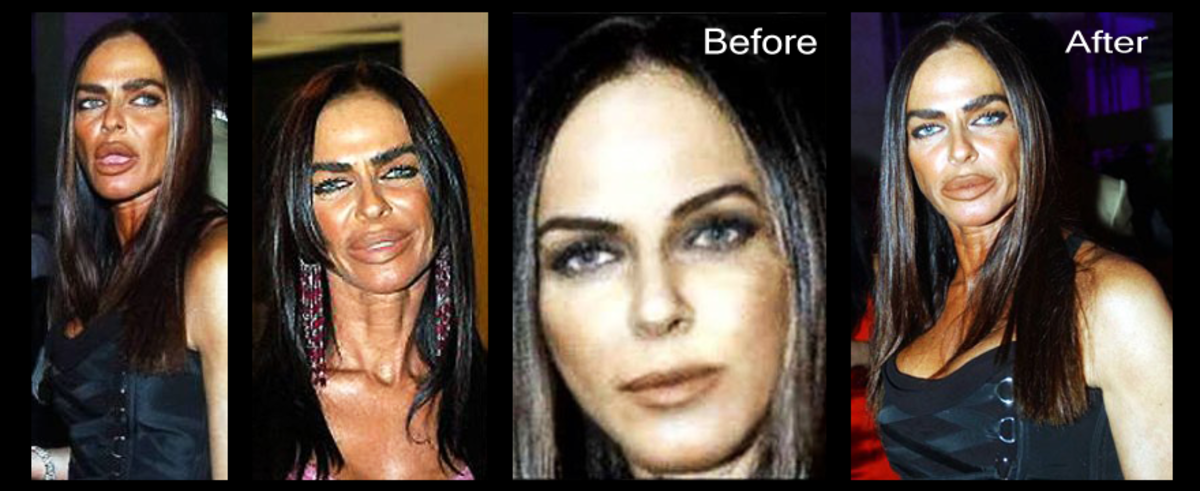 Michaela Romanini: The first two photos were taken after her surgeries. The last two show her face before surgery and after.