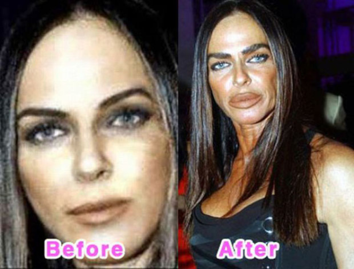 Michaela Romanini - Before and After