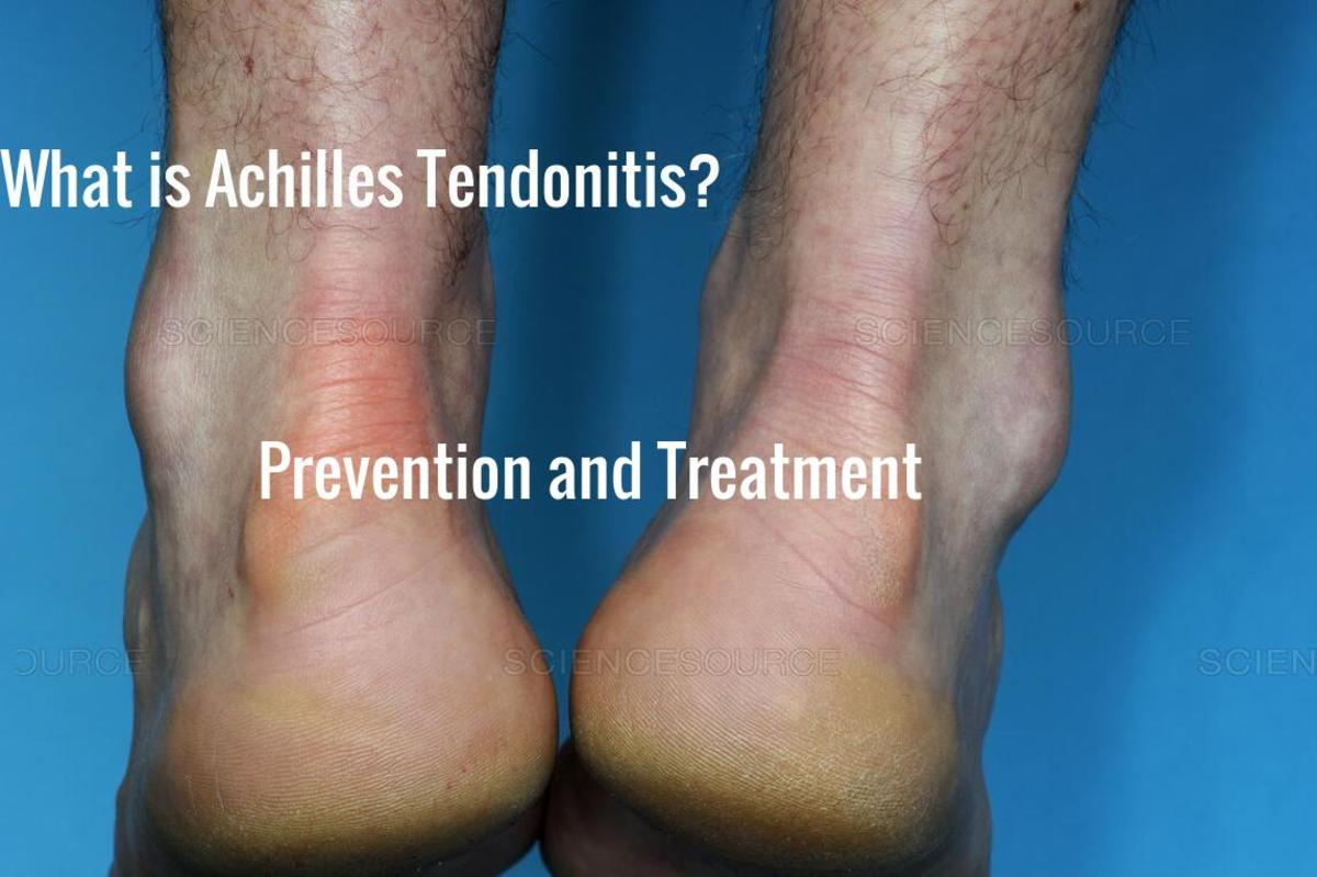 Achilles Tendonitis. What is it? Prevention and Treatment