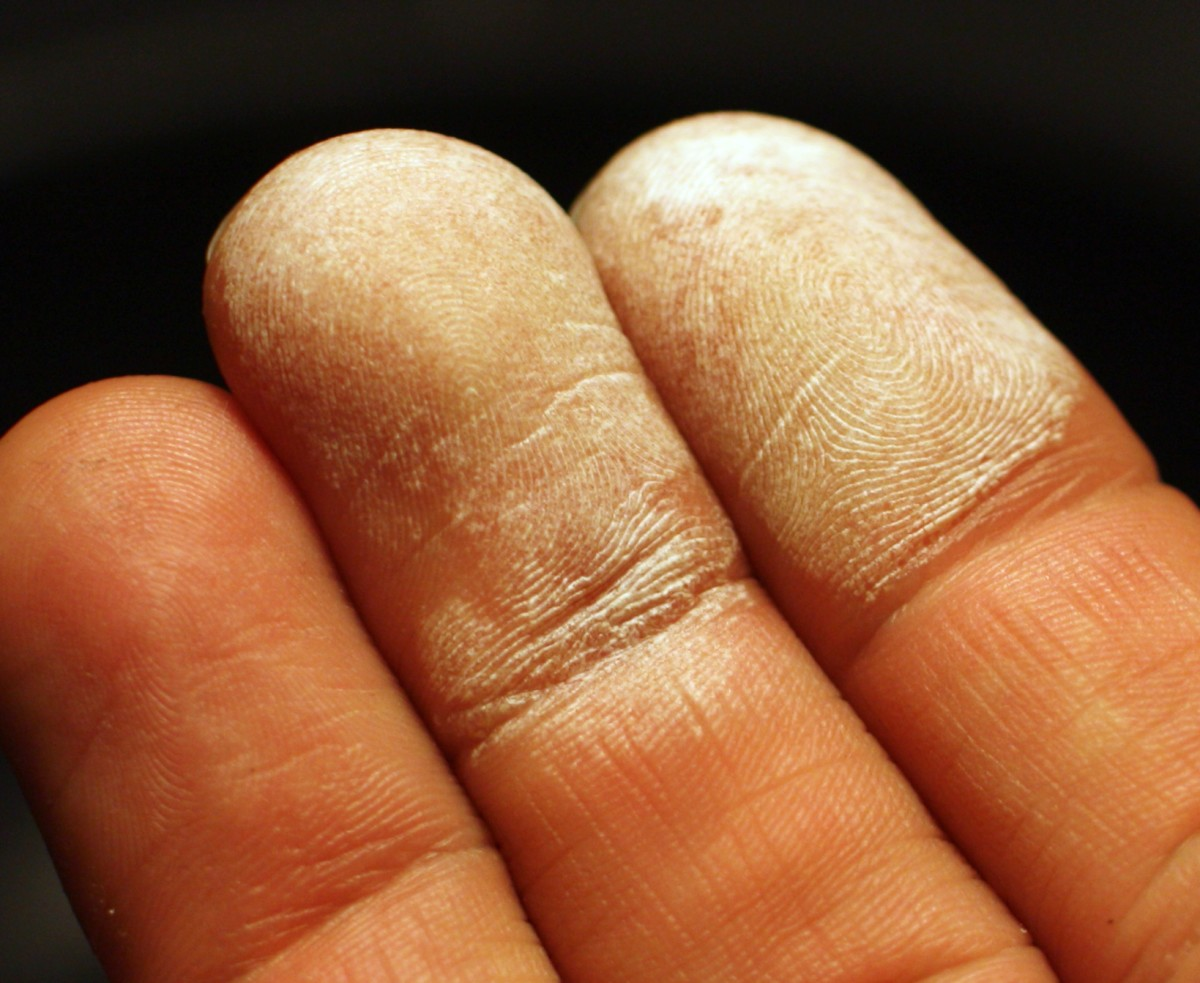 Fingers turn white when exposed to 30% Hydrogen Peroxide