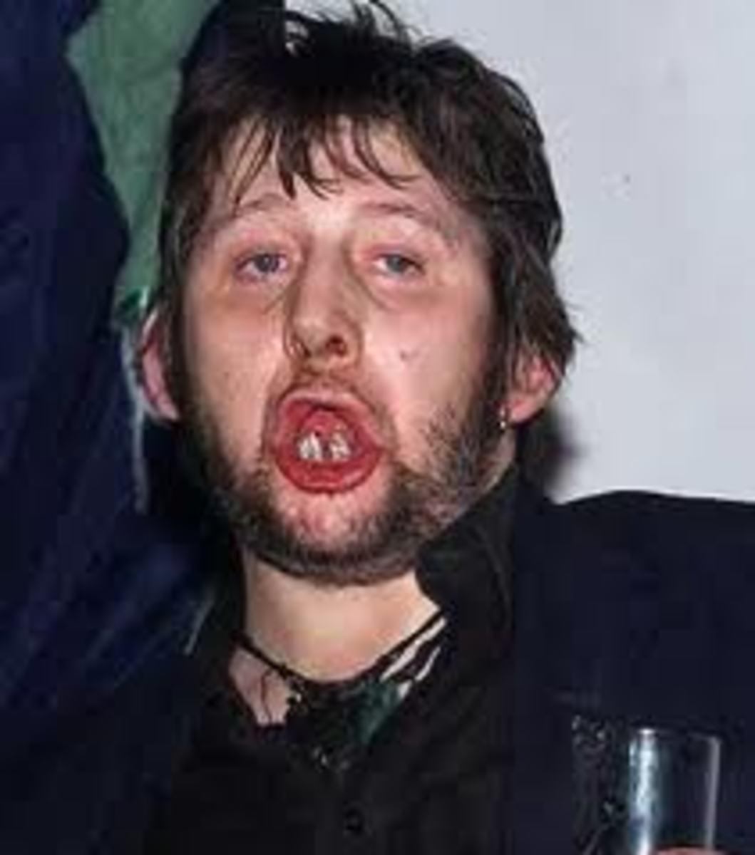 To be fair, Shane MacGowan lately has a brand new set of teeth.