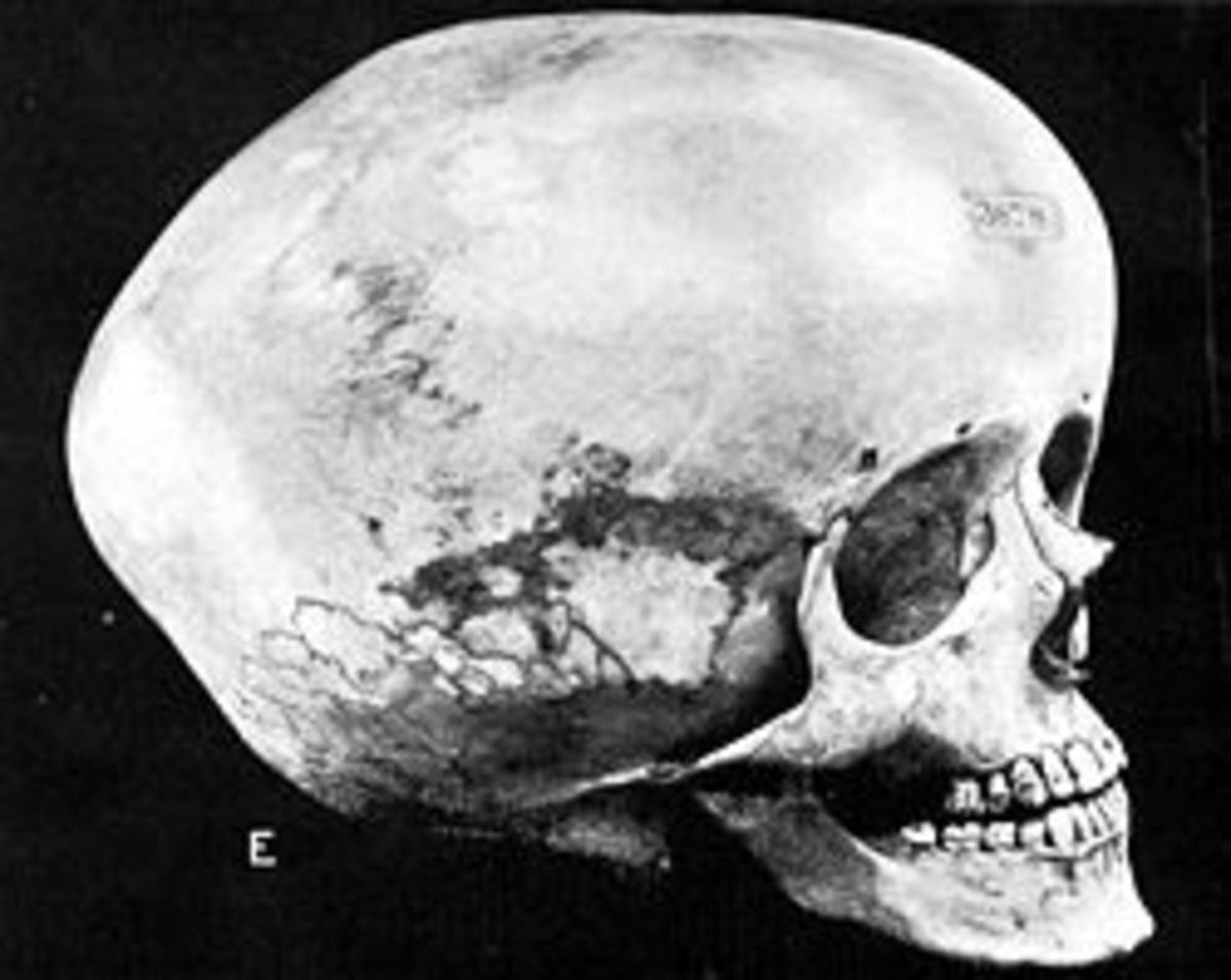 Boskop Man - Why Did a Species of Hominid With 150 IQ's Go Extinct?