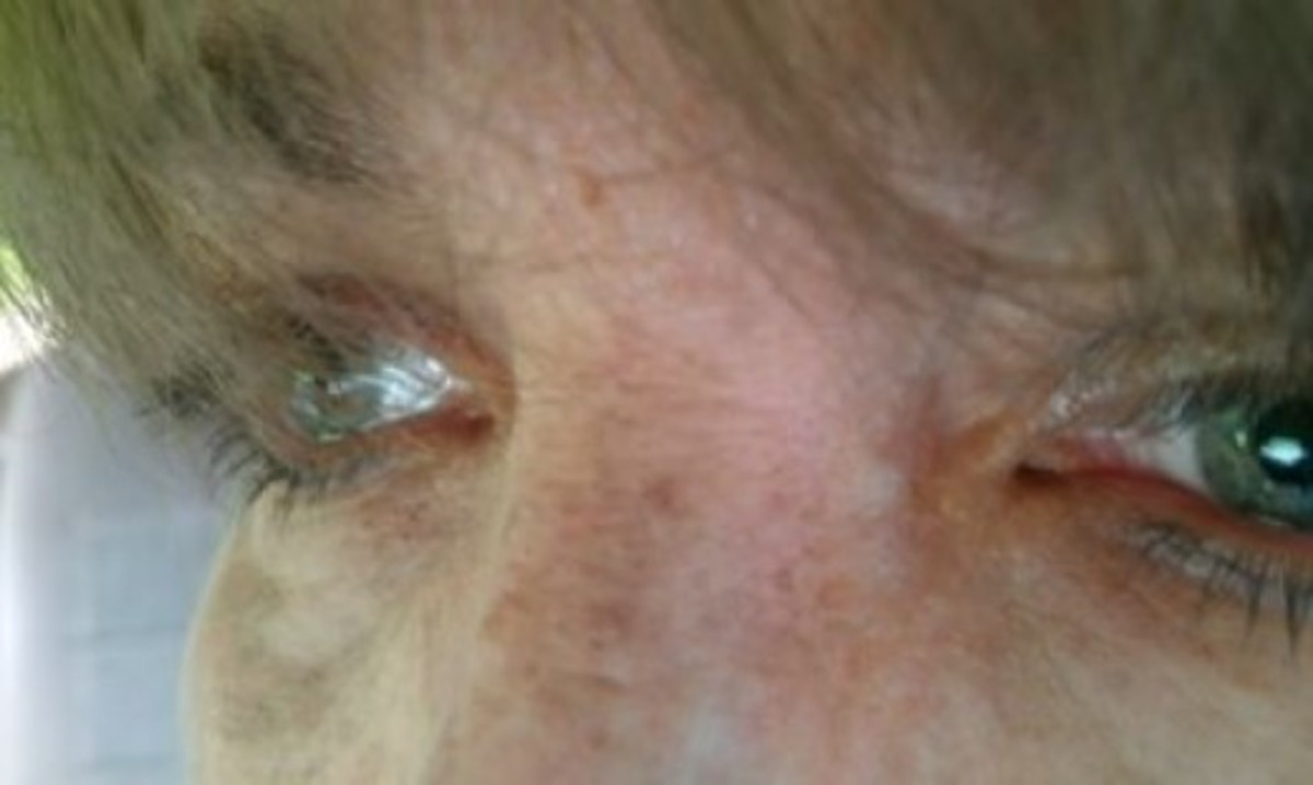 """One day when I """"escaped"""" I took photos of my eyes to remind me what sorrow looks like."""