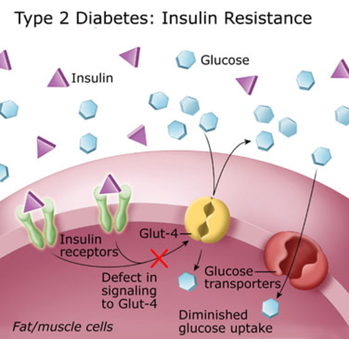 What is Type 2 Diabetes Mellitus or Non-Insulin Dependent Diabetes ...: tobusiness.hubpages.com/hub/Type-2-Diabetes-NIDDM