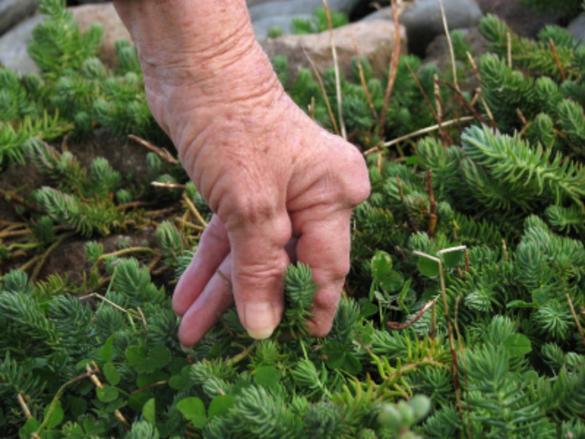 Rheumatoid Nodules on Finger Knuckles