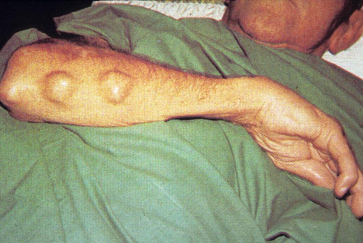 Rheumatoid Nodules on Back of Forearm