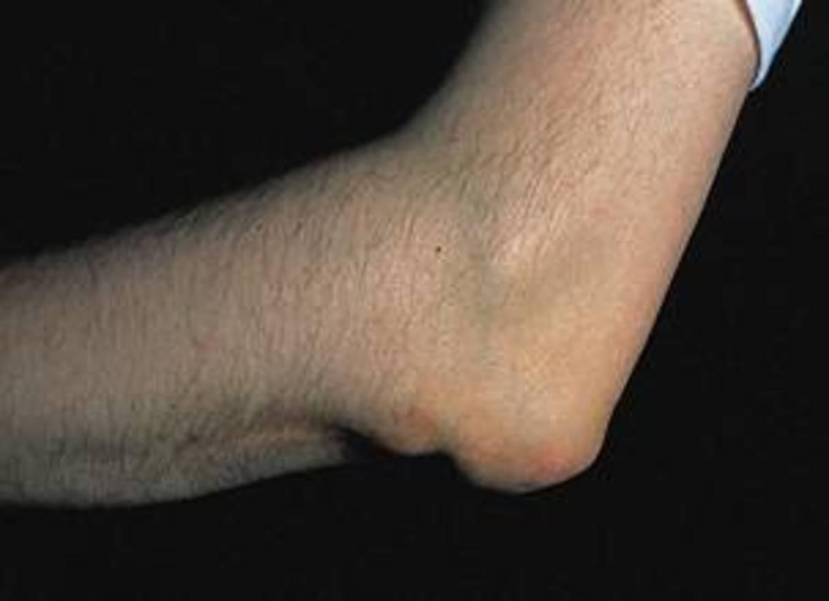 Rheumatoid Nodules on Elbow