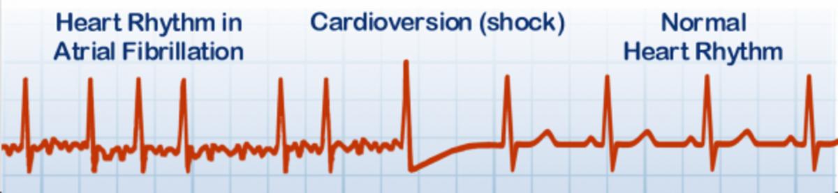 EKG Strip of heart in atrial fibrillation followed by cardioversion and normal sinus rhythmm
