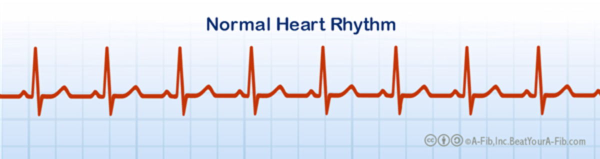 Notice the steady pattern of the normal heart beat.