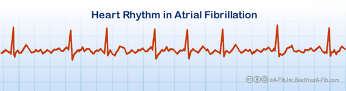 Compare the above pattern to the irregular, rapid pattern of the heart in A-Fib.