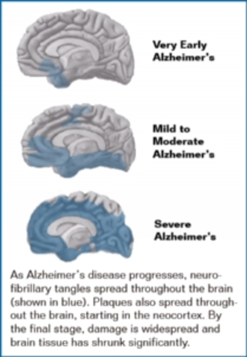 Alzheimer's: a slow death of mind and humanity