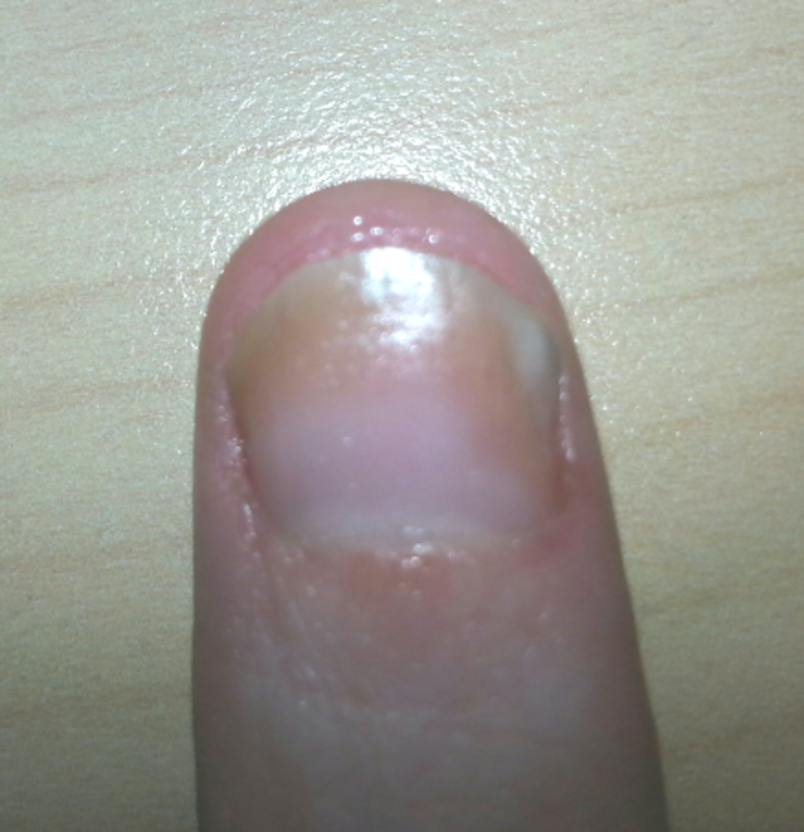 Nail Psoriasis with Fungus (My Left Thumb Nail) Recently treated with steroid injections, and daily with my nail oil, and Vicks.