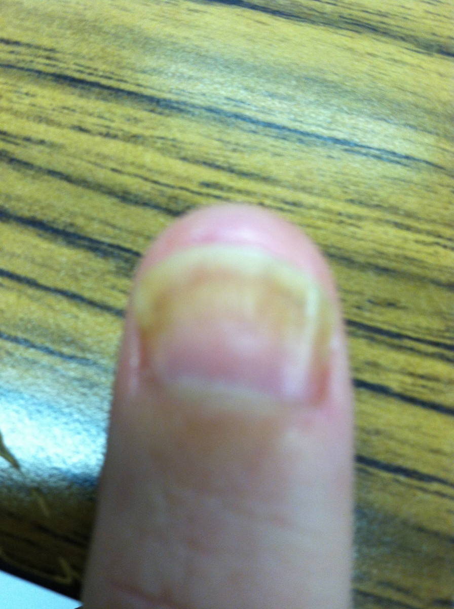 Example Thumb Nail (Fingernail Fungus) and nail bed separation