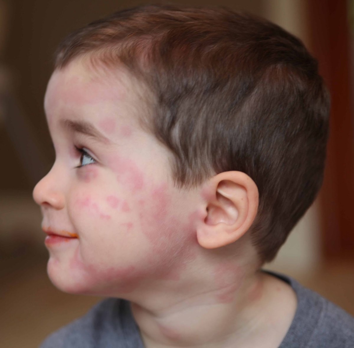 Red Patches on Face, Causes and Remedies