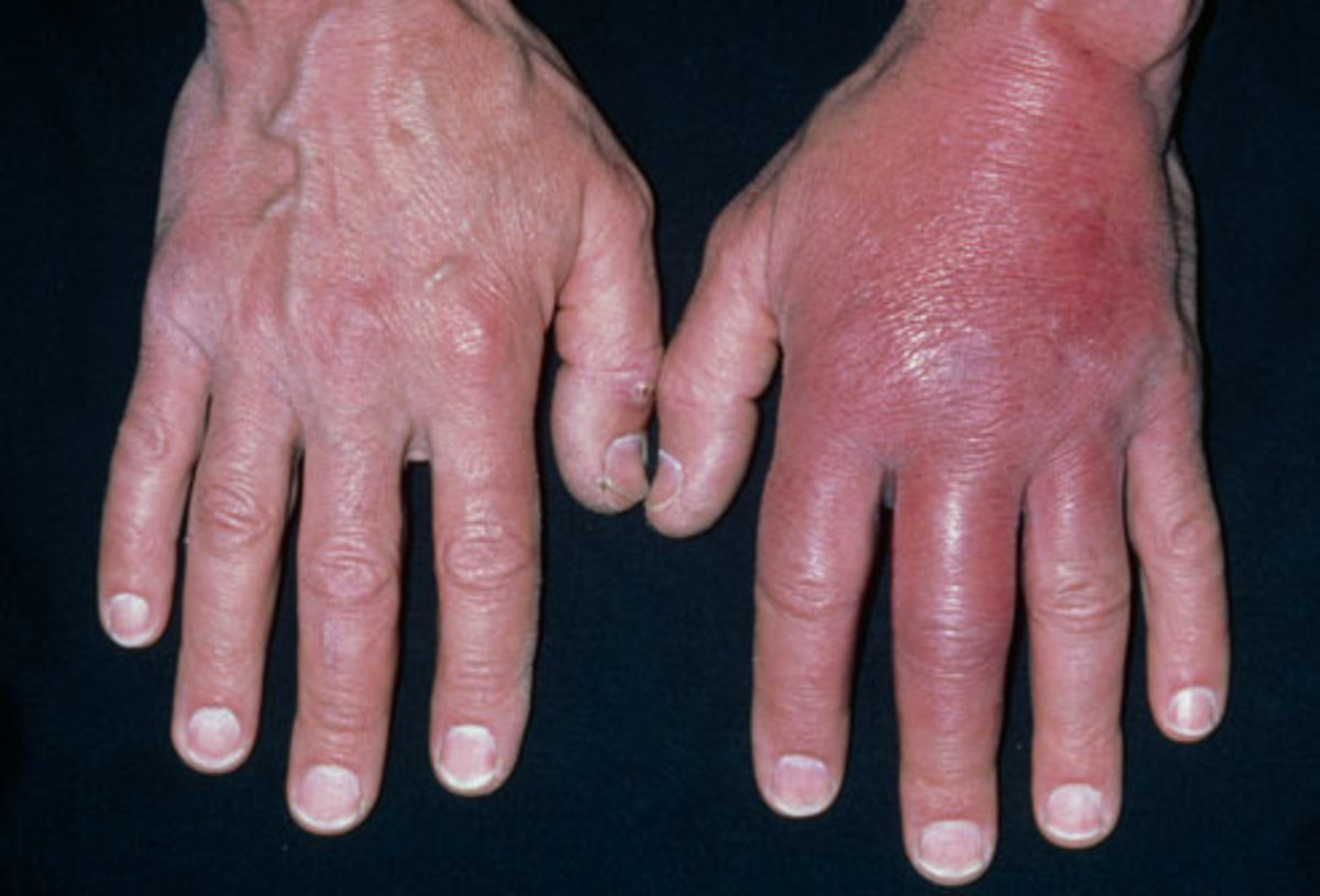 You can See where the second hand shows swelling called cellulitis caused by a serious case of MRSA