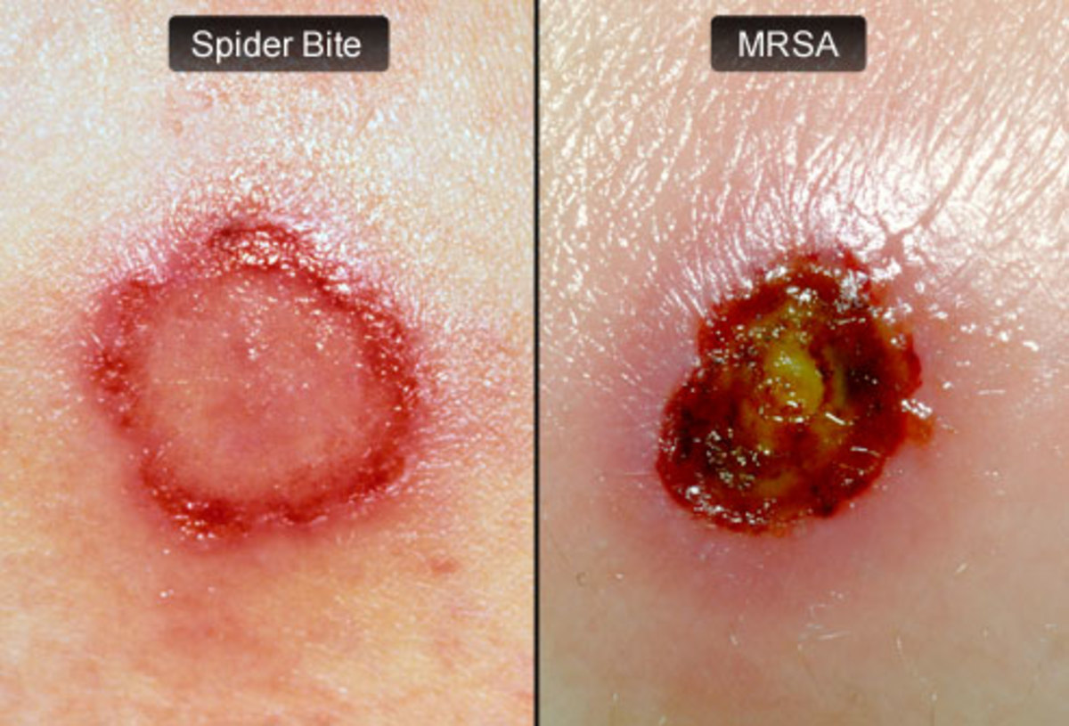 The first slide is a spider bite the second MRSA. The 2 are sometimes mixed up.