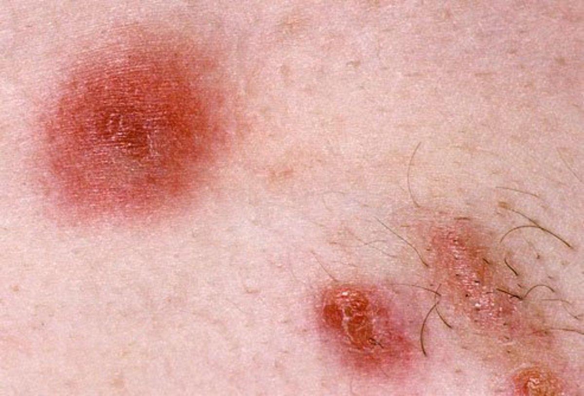 Bug Bites On Dogs Chest Bandage