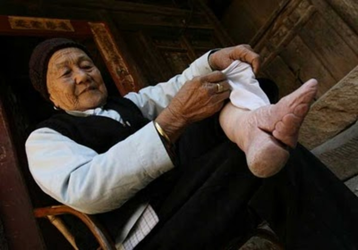 "FOOT BINDING was officially ended after the Communists took power in 1949. The foot was broken across the arch and 4 toes wrapped under the foot. The smallest feet were the ""best"" and these women had to be carried, unable to walk."