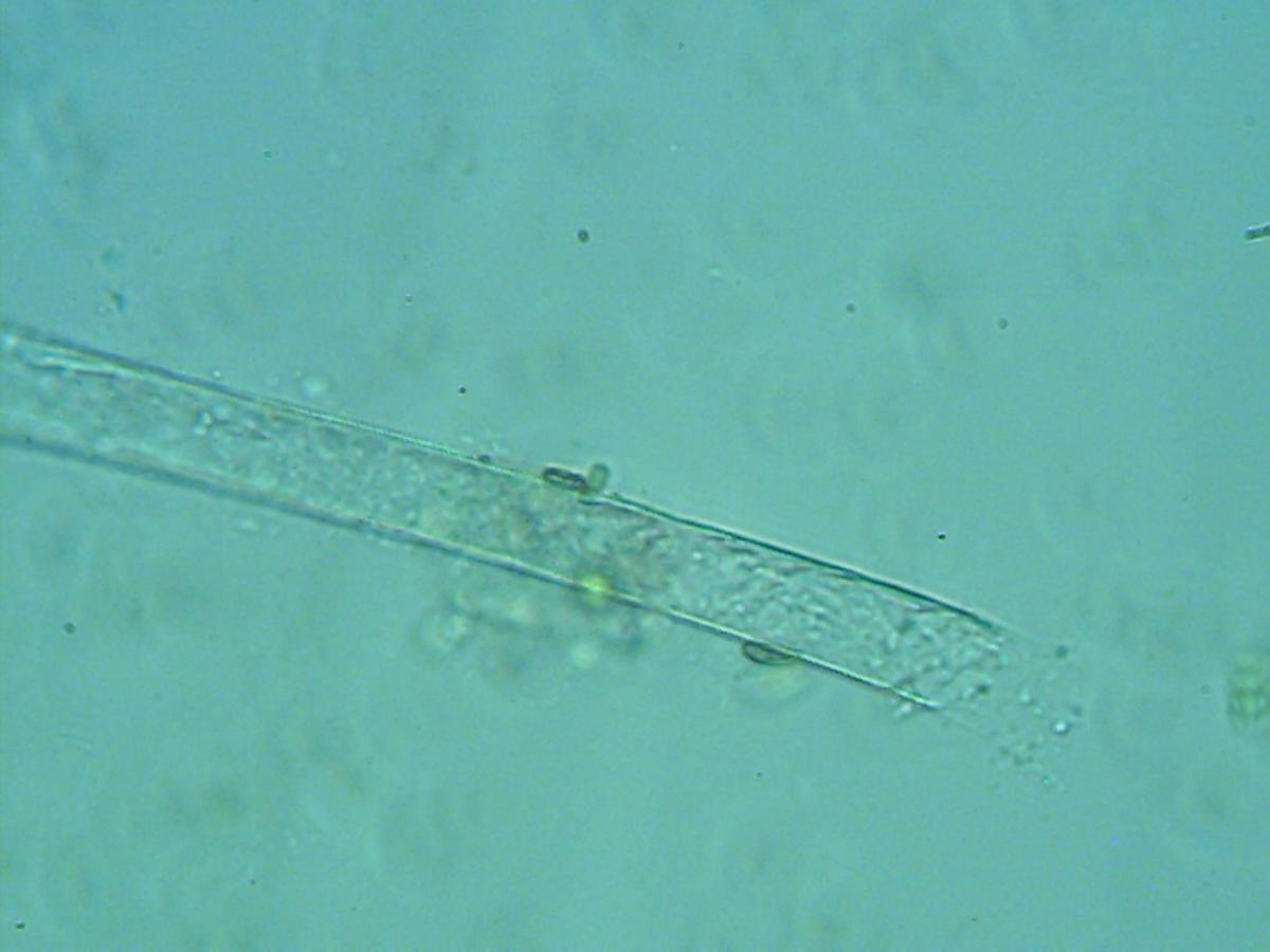 A colony of algae organized into a strand