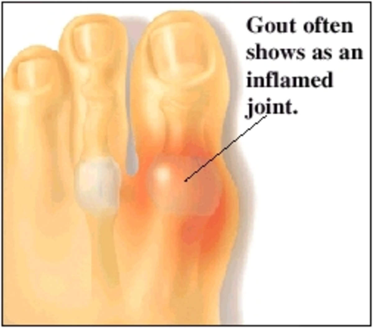 Cure Gout With Green Papaya And Green Tea Leaves