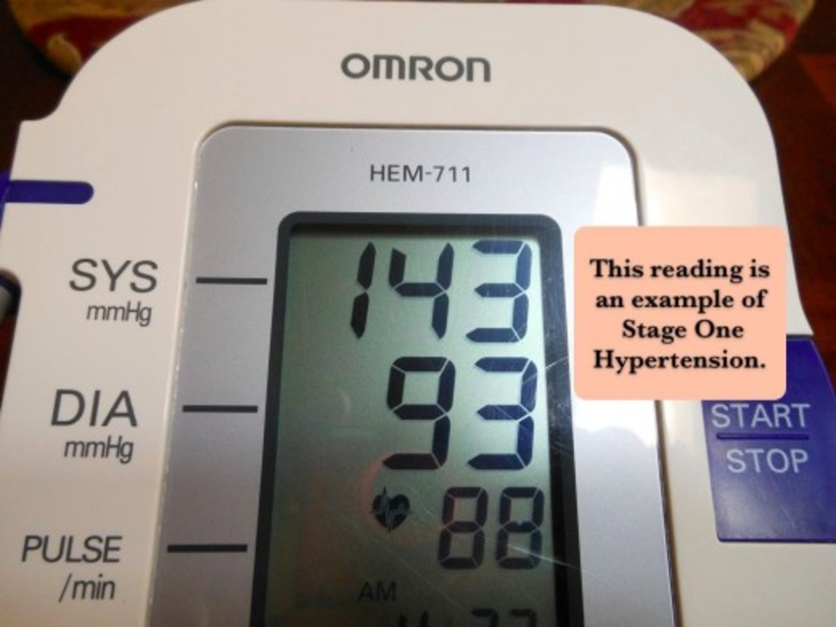 Prehypertension begins with readings above 120/80.