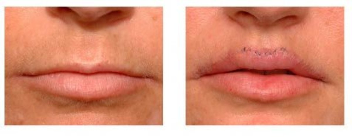 lip-enhancement-augmentation