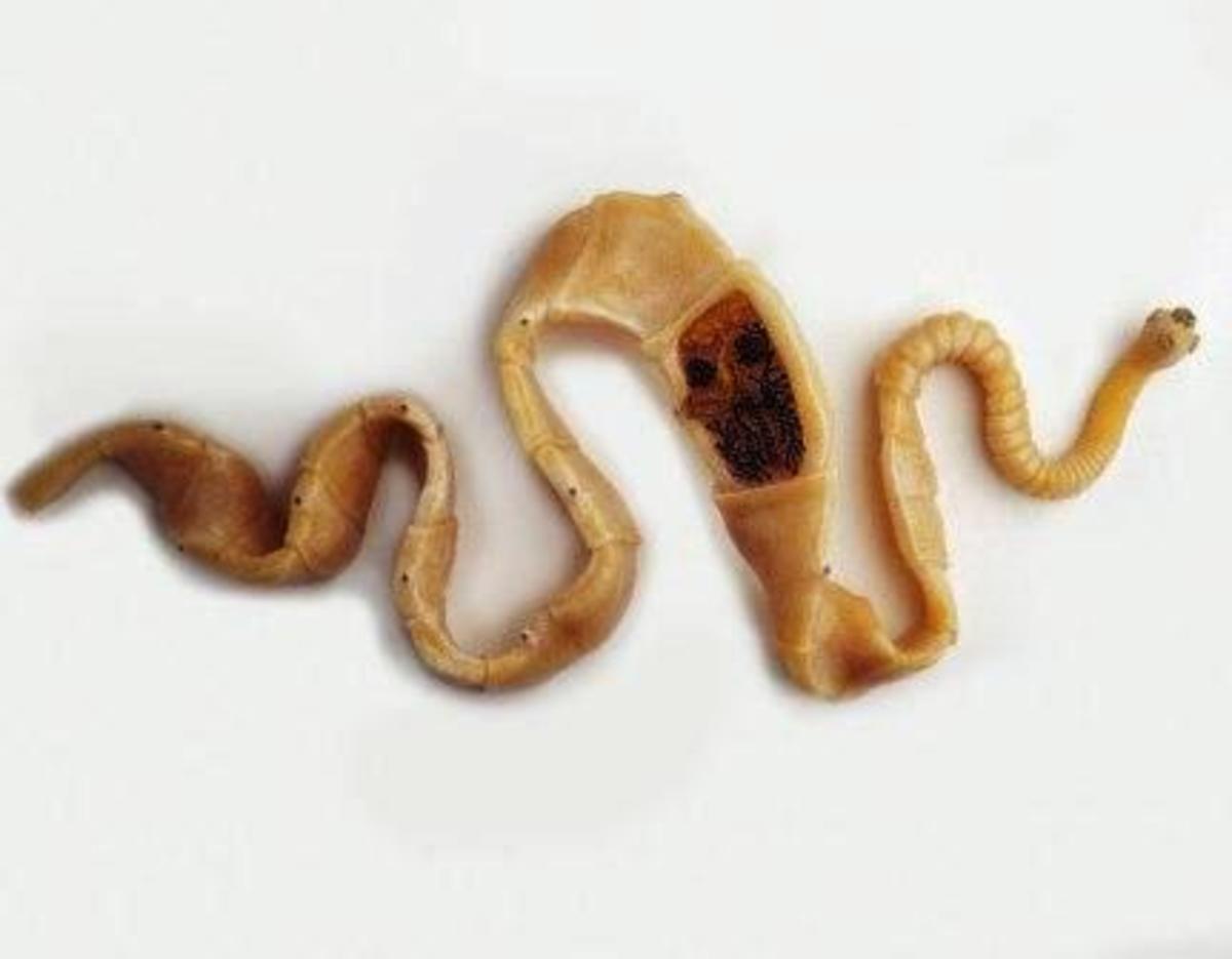 Pork Tape Worm: Taenia solium