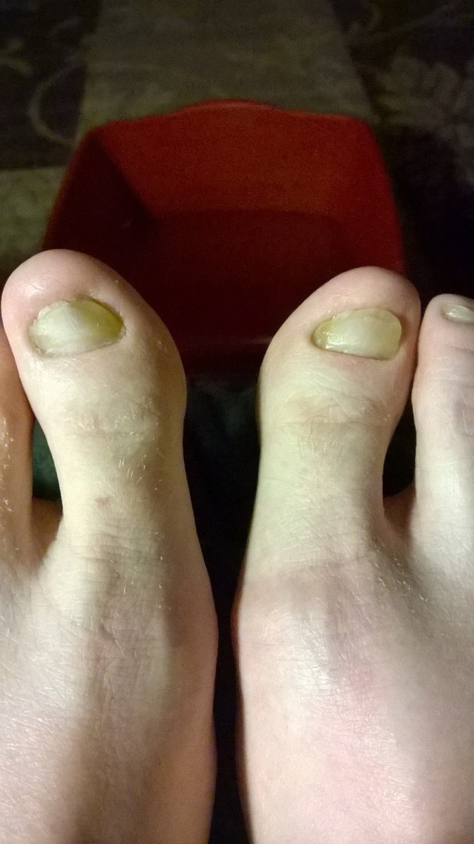 April 20, 2014. The bottom part of the nails on my big toes are starting to look normal and the rest of the nails are starting to turn clear.