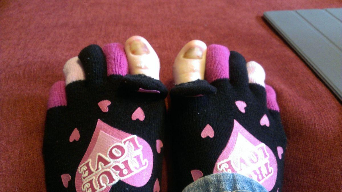 how-to-naturally-get-rid-of-toenail-fungus