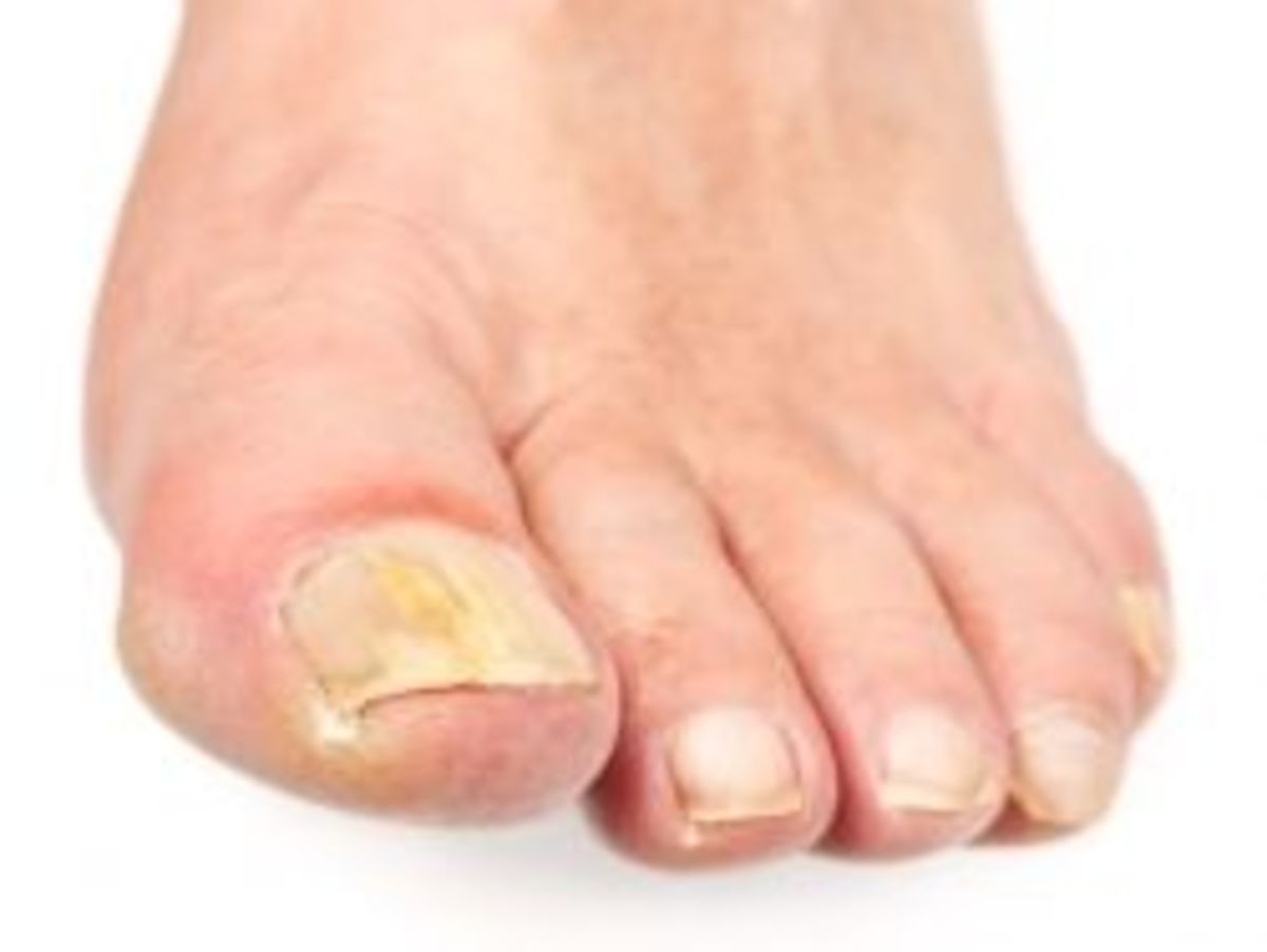 How to Naturally Get Rid of Toenail Fungus   HubPages
