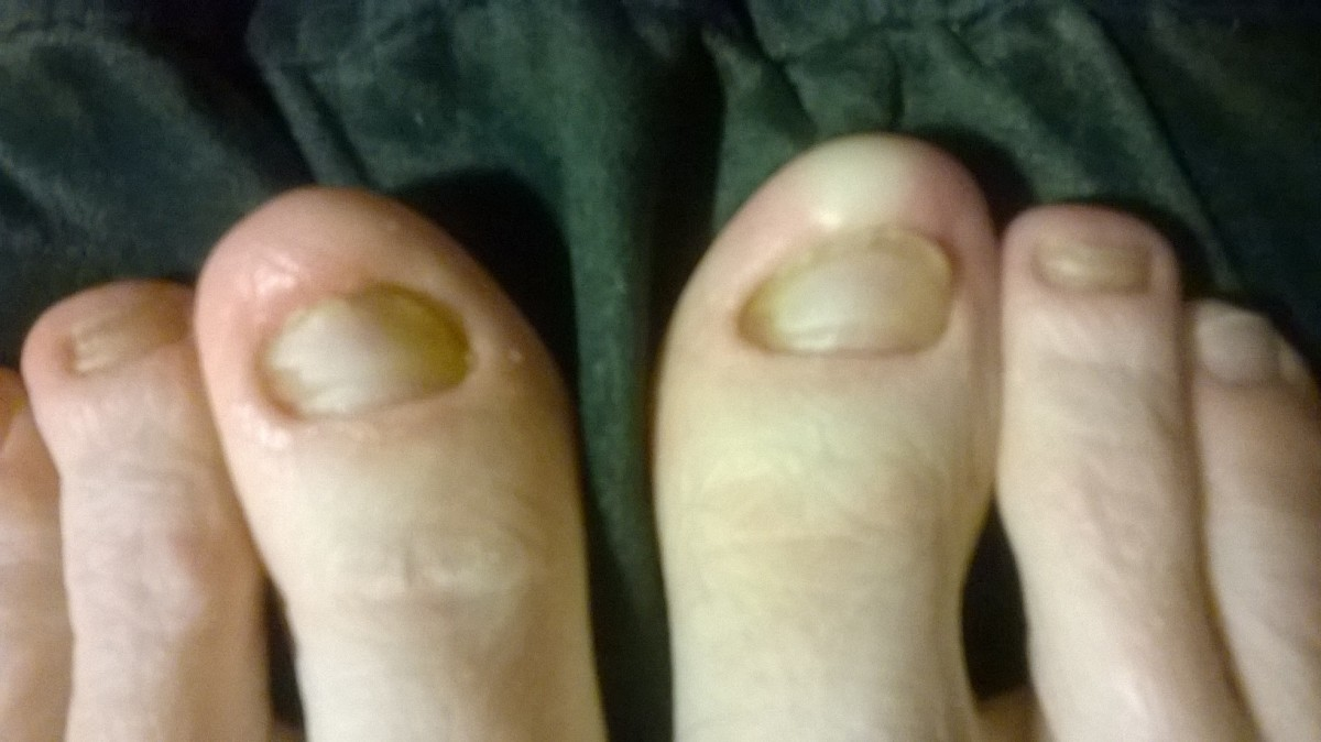 April 26, 2014. I am so excited about my progress! I see more new, clear nails growing underneath the fungus ones. Yay!