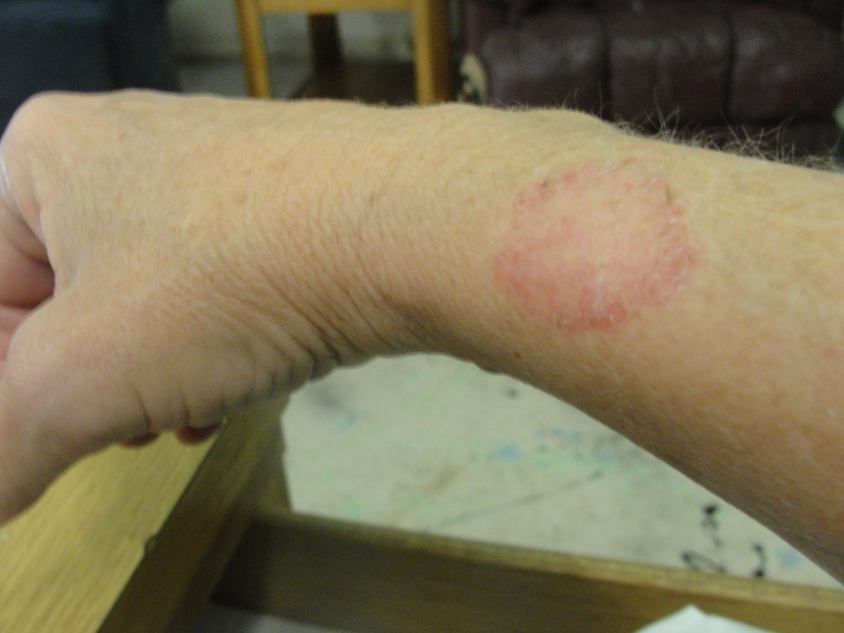 Individual in Western AR with chronic Lyme disease, tested positive in 2010.  Rash recurs frequently. Has been cultured.