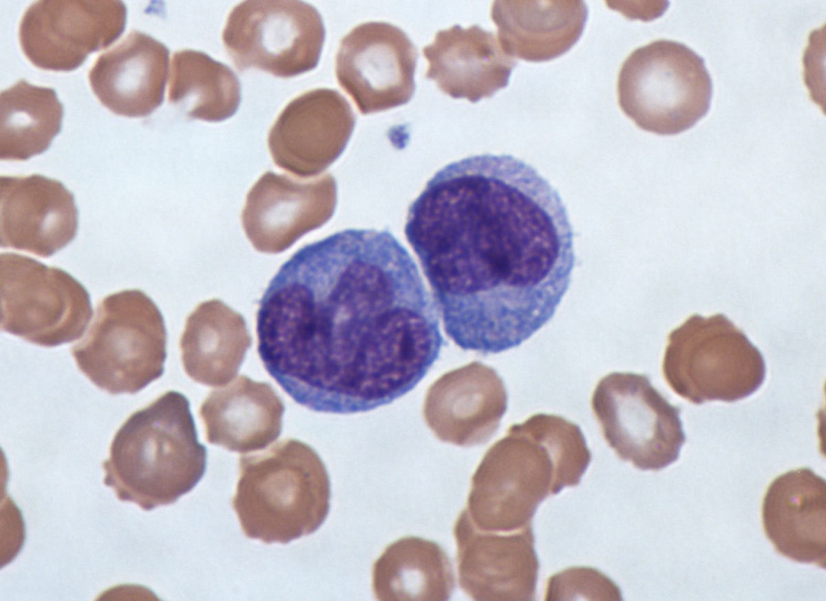 Two monocytes (stained with Giemsa in blue)