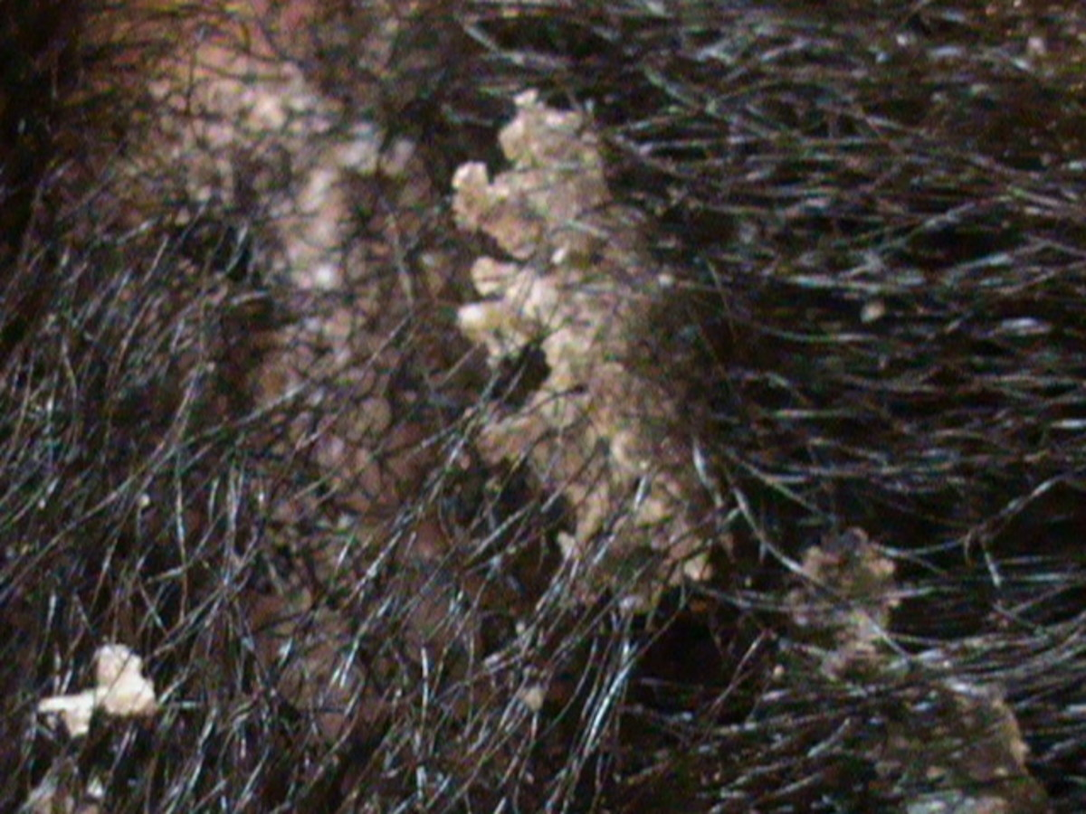 Flakes lifted from scalp