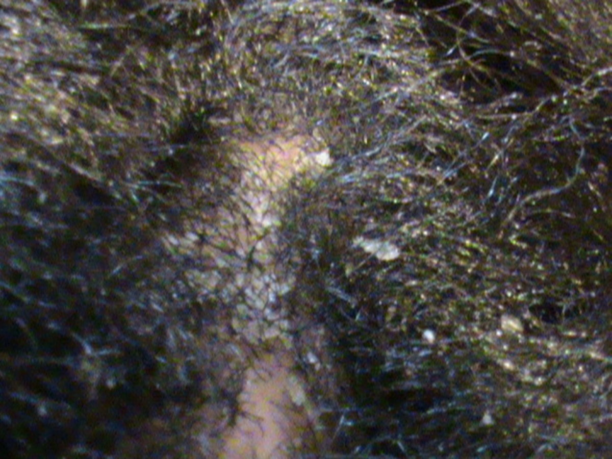 Flakes sitting on scalp