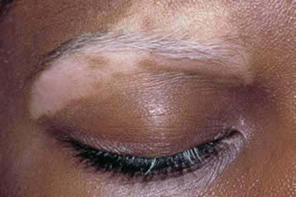 Vitiligo - affecting eyebrow